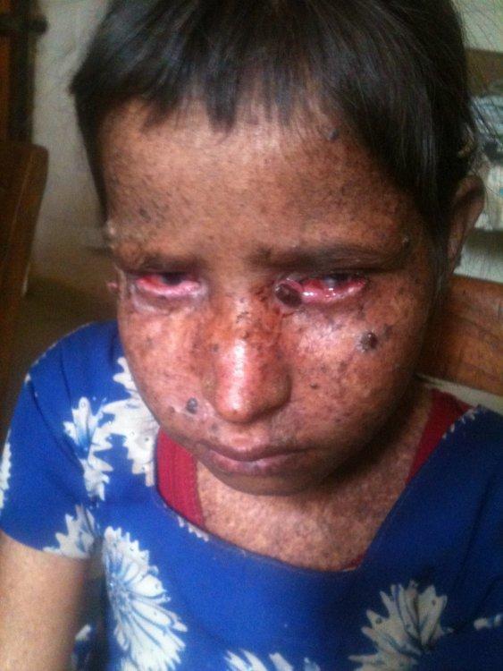 59762684_childsufferingfromxe.jpg